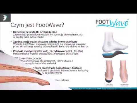 Ortopedia koślawe kolana