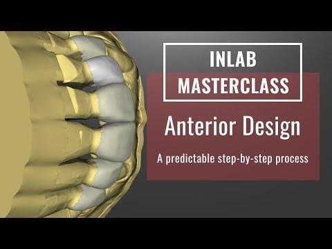 InLab 18: Anterior Design Tips & Tricks