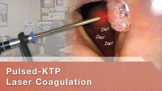 Pulsed-KTP Laser Coagulation of Vocal Cord Papillomas (RRP)