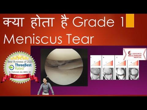 Cauzele durerii în articulația șoldului drept
