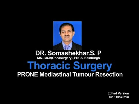 Robotic Thoracic Prone Mediastinal Tumour