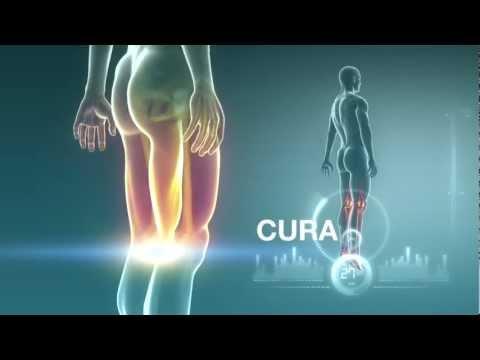 Ciò che può trattare lartrosi del ginocchio