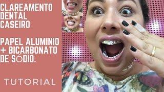Descargar Mp3 De Como Fazer Clareamento Dental Caseiro Com