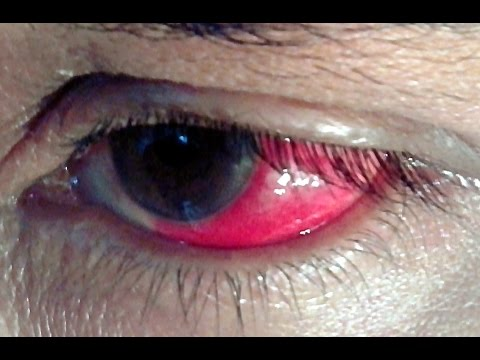 Video RED EYE -- Top 10 Causes