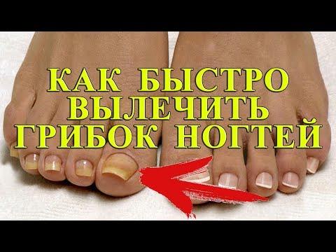 Auf dem Daumen des Beines den Nagel utolschtschajetsja als zu behandeln