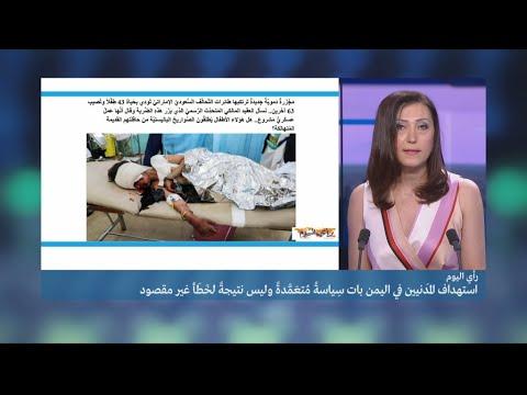 العرب اليوم - شاهد: المجزرة الجنوبية واستهداف المدنيين في اليمن