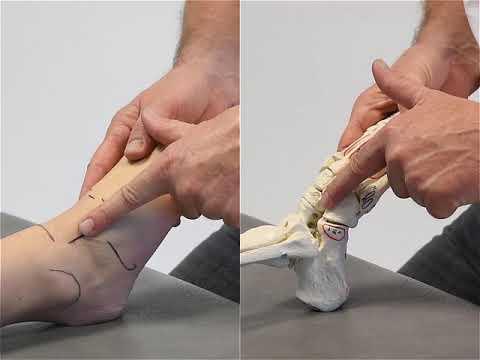 Die Entstellung der Finger des Fusses bei den Kindern des Fotos