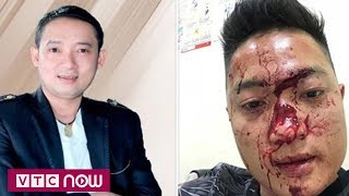 Nghệ sĩ hài Chiến Thắng bị tố thuê vệ sĩ đánh người?