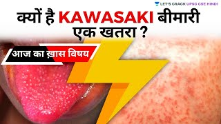 Is KAWASAKI Disease a Threat (UPSC CSE/IAS 2020/2021 Hindi) Saurabh Pandey