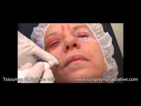 Smokers Wrinkles With Plexr Tsioumas G. Sotirios MD