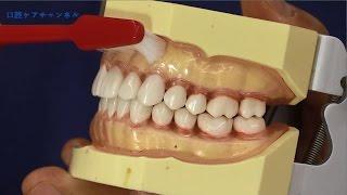 糖尿病の人の口腔ケアの方法