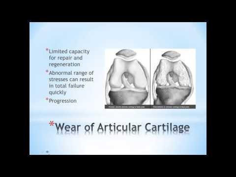 Artroza în tratamentul picioarelor