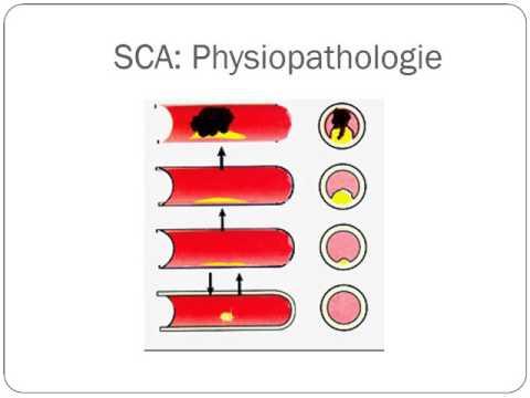 Grade encéphalopathie hypertensive 4
