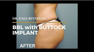 BBL with Buttock Implant | Dr. Dale Reynolds
