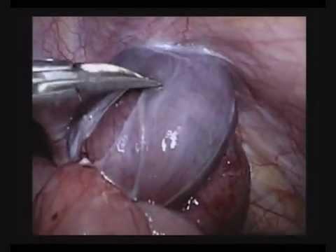 Lelettrizzazione a osteochondrosis cervicale con un bastone