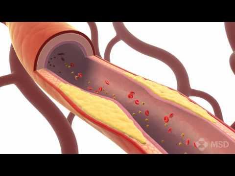 Die scharfe Thrombose des Fusses