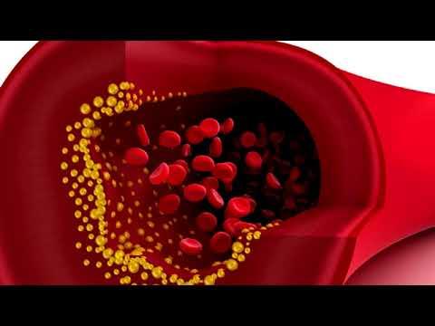 Herzkrankheit, Bluthochdruck