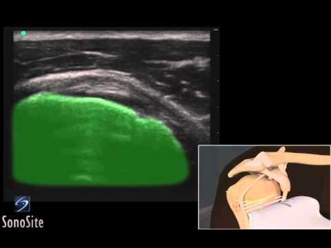 Perché ferito il gomito della mano destra in estensione