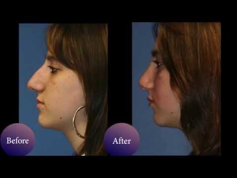 Nose job before & after photos of NYC patients