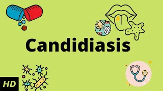 CANDIDIASIS, Causes, Signs and Symptoms, Diagnosis and Treatment.