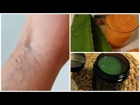 Infiammazione di pelle di gambe a varicosity