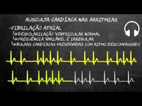 Hipertensão ventricular pequeno