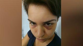 Директор оставил синяки на лице строптивой сотрудницы