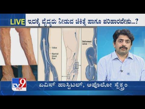 Cum se tratează picioarele eczeme în varicoză