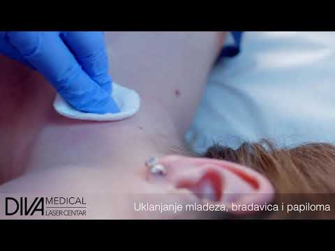 Hpv head and neck cancer risk