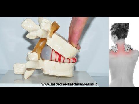 Tutti i metodi di trattamento di ernia spinale