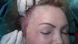 Scarring from Prior Facial Surgeries – Post Op. Part 4
