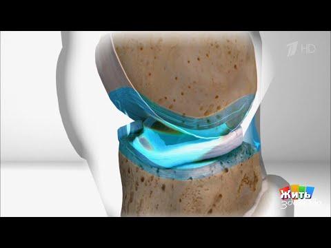Program de reparație a genunchiului
