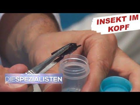 Die Behälter des Gehirns und der Halswirbelsäule zu prüfen