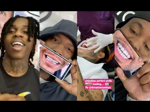 Rappers Getting Their Teeth Fixed In Colombia 😬Polo G, Moneybagg Yo, Rick Ross, MO3, Blac Youngsta