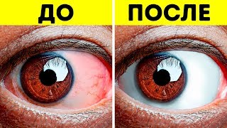 14 упражнений, которые позволят снять усталость с глаз