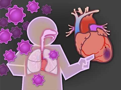 Die Ursachen des Zuckers im Blut und Urin