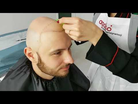 Umyć włosy bardziej skuteczne środki folk