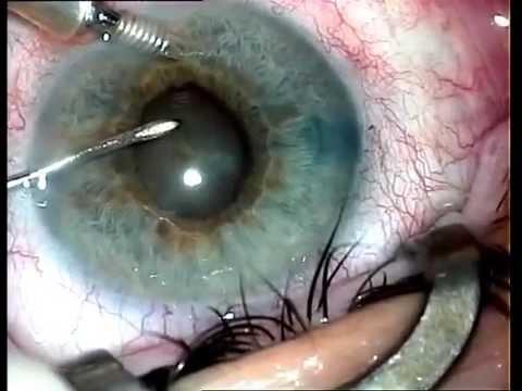 Cum să îmbunătățiți vederea într-un an