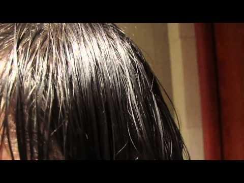 Jakie witaminy trzeba pić przeciw wypadaniu włosów
