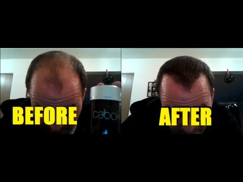 Caboki Works For Me Effective Hair Loss Makeup New