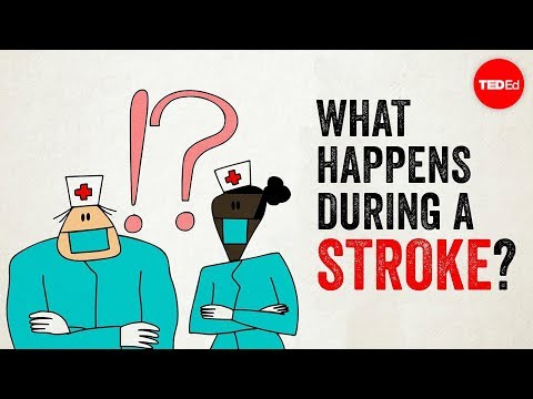 Learn What Happens During a Stroke