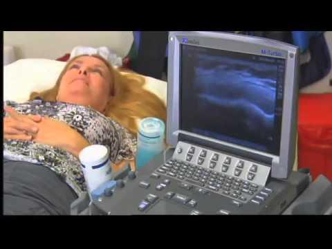 Prostata biopsija ravnanje
