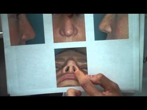 Revision Rhinoplasty with Rib Graft
