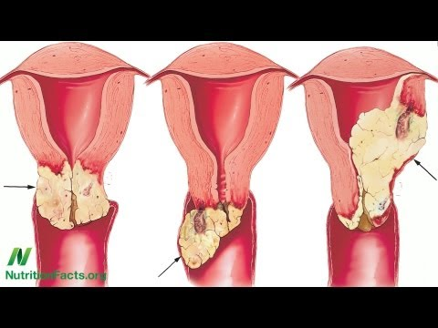 Cancer de col uterin se poate trata