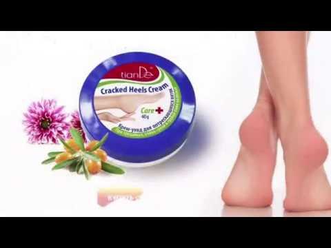 Диабет тип 2 изтръпнали крака