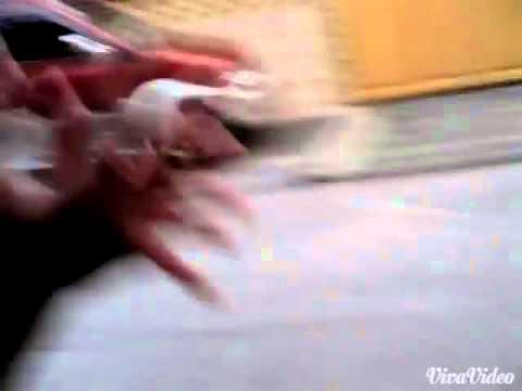 Kung paano ituring ang toe nail rip off kung