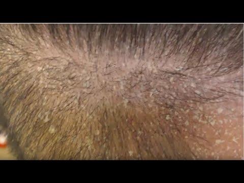 Quali vernici tingere capelli a psoriasi