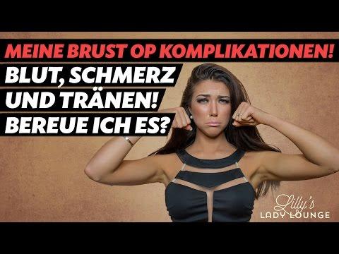 Die korrigierende Operation der Brust