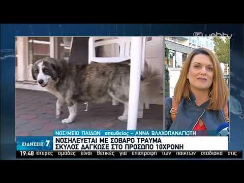 Σκύλος δάγκωσε στο πρόσωπο 10χρονη   30/04/2020   ΕΡΤ