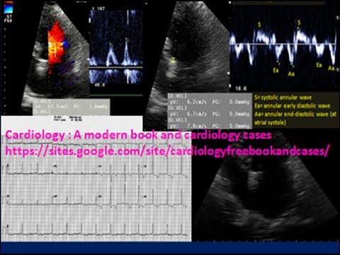 Hipertensión arterial dif.diagnoz
